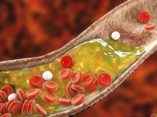 ТОП-10 действенных продуктов для очищения артерий