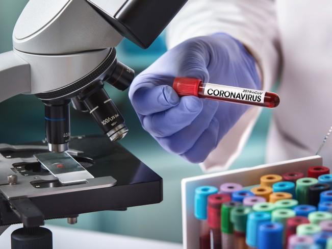 Сколько живет коронавирус на различных поверхностях