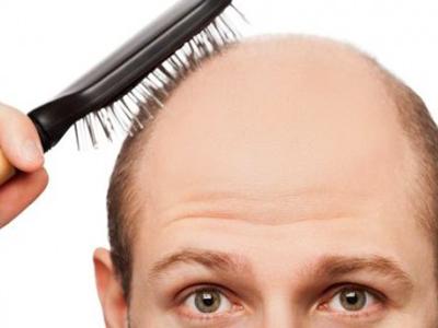 Состав витамин для волос пантовигар