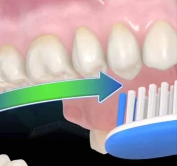 Гигиена полости рта: как подобрать зубную щетку и правильно чистить зубы