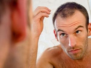 Выпадение волос у мужчин: коротко о главном