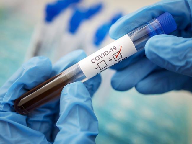 Обнаружены новые симптомы коронавируса